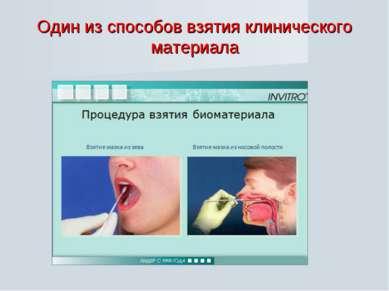 Один из способов взятия клинического материала
