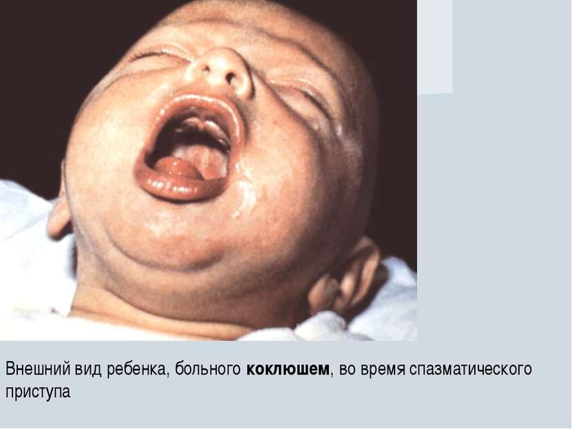 Коклюш у взрослых симптомы и лечение в домашних условиях
