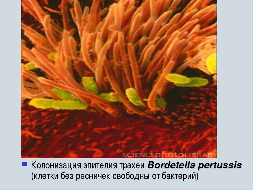 Колонизация эпителия трахеи Bordetella pertussis (клетки без ресничек свободн...