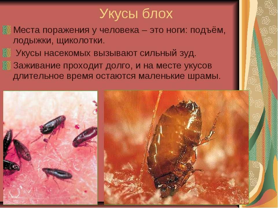 Укусы блох Места поражения у человека – это ноги: подъём, лодыжки, щиколотки....