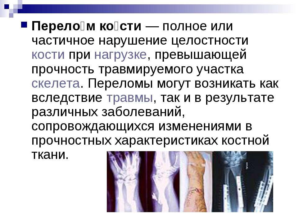 Перело м ко сти— полное или частичное нарушение целостности кости при нагруз...