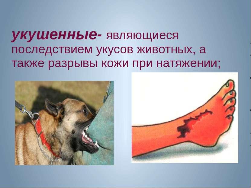 укушенные- являющиеся последствием укусов животных, а также разрывы кожи при ...