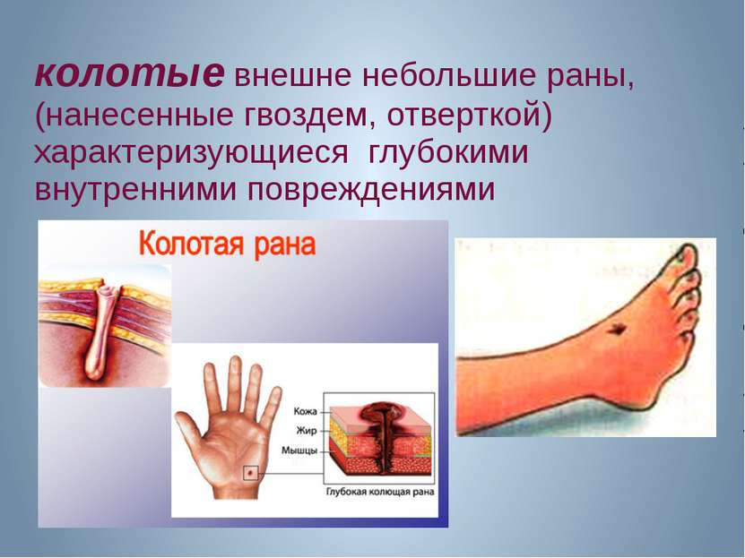 колотые внешне небольшие раны, (нанесенные гвоздем, отверткой) характеризующи...