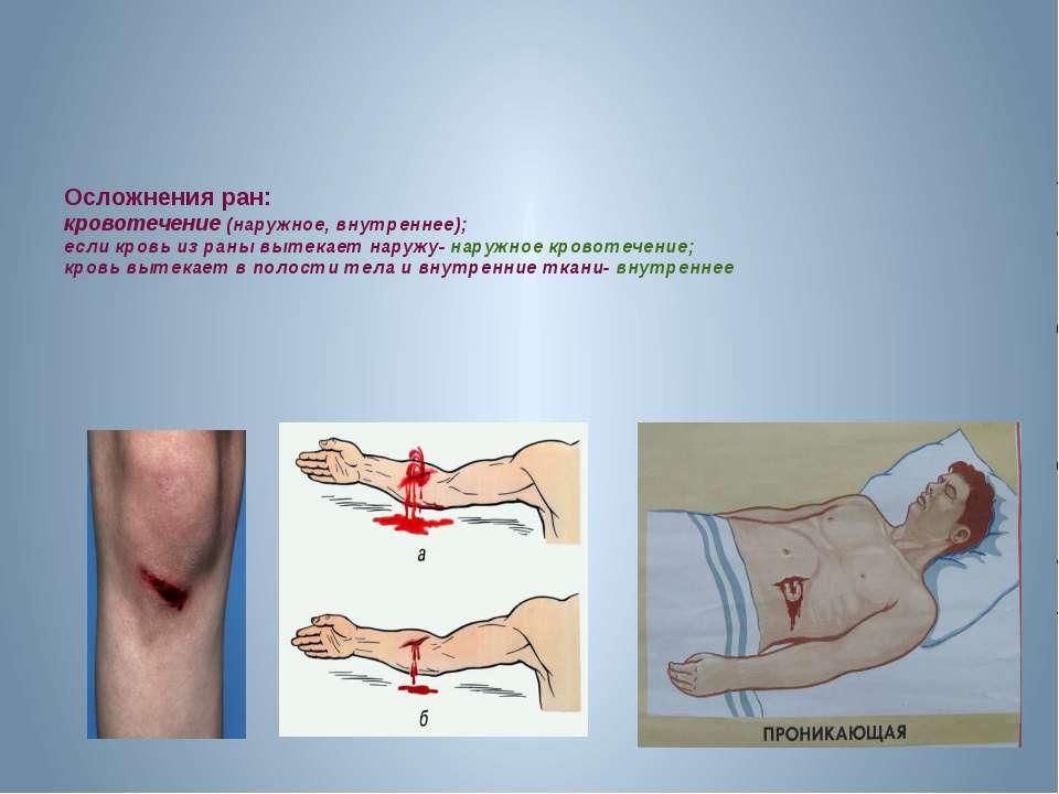 Осложнения ран: кровотечение (наружное, внутреннее); если кровь из раны вытек...