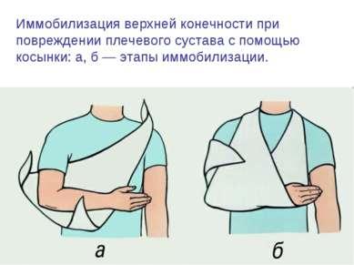 Иммобилизация верхней конечности при повреждении плечевого сустава с помощью ...