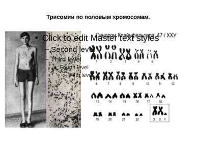 Трисомии по половым хромосомам.