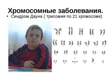 Хромосомные заболевания. Синдром Дауна ( трисомия по 21 хромосоме)
