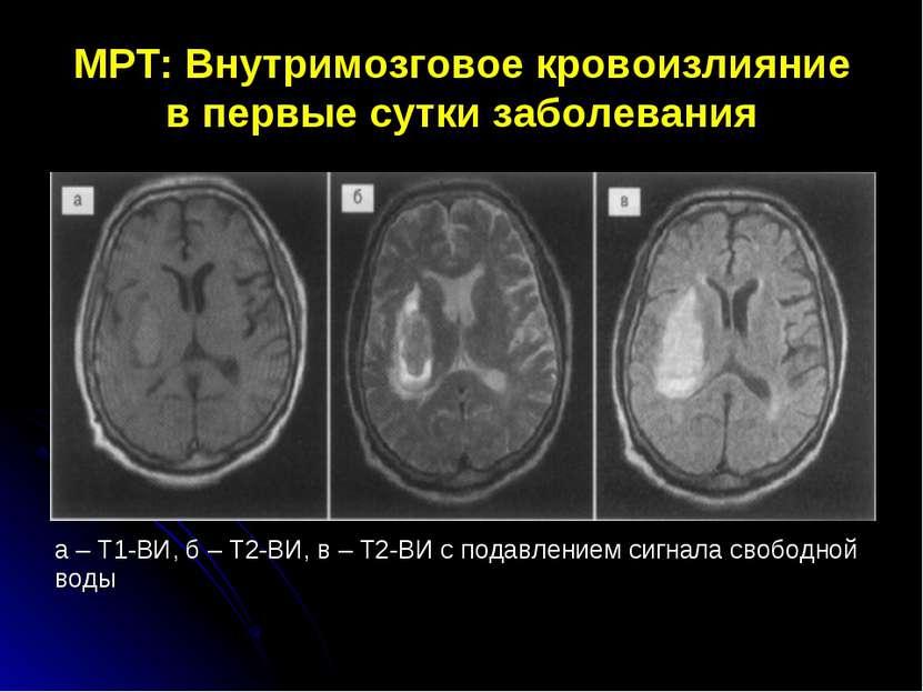 МРТ: Внутримозговое кровоизлияние в первые сутки заболевания а – Т1-ВИ, б – Т...