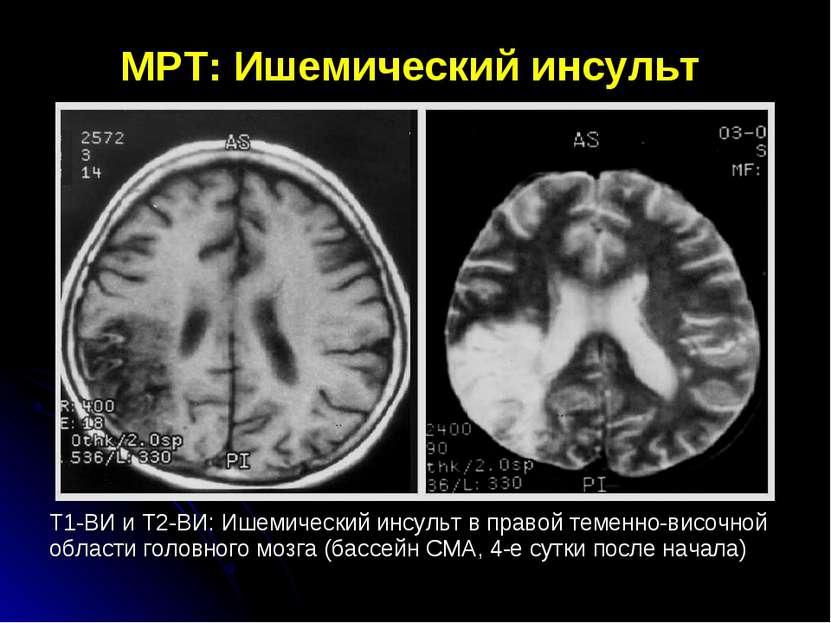МРТ: Ишемический инсульт Т1-ВИ и Т2-ВИ: Ишемический инсульт в правой теменно-...