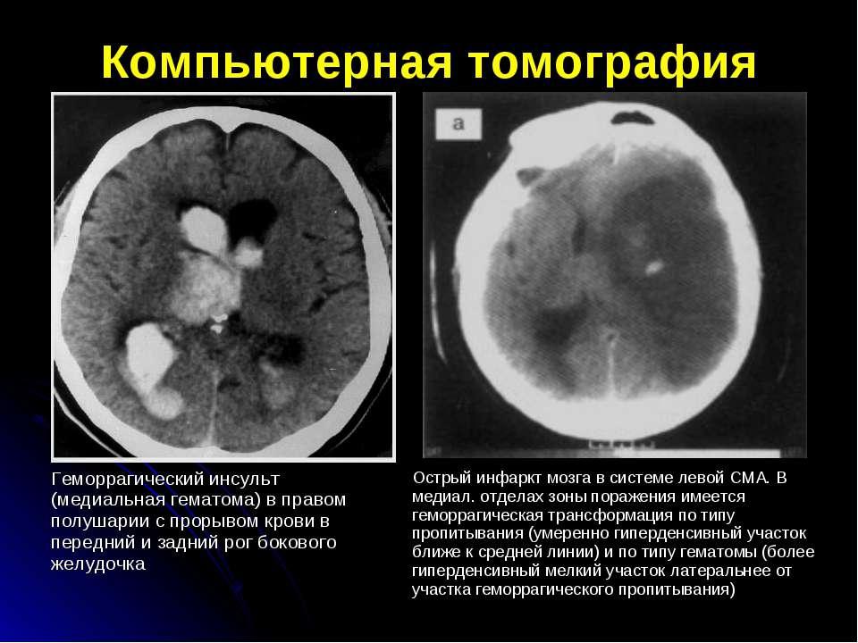 Компьютерная томография Геморрагический инсульт (медиальная гематома) в право...