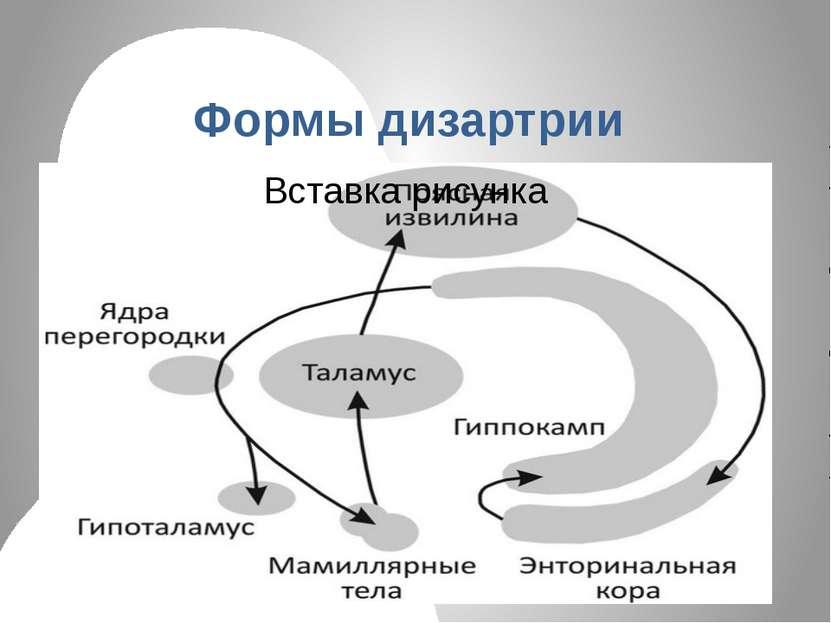 Формы дизартрии