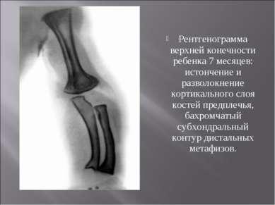 Рентгенограмма верхней конечности ребенка 7 месяцев: истончение и разволокнен...
