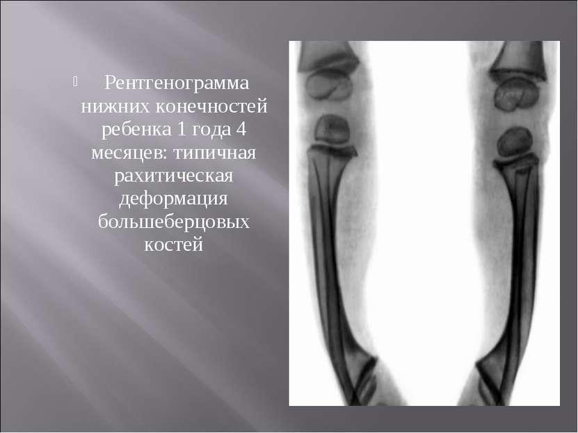 Рентгенограмма нижних конечностей ребенка 1 года 4 месяцев: типичная рахитиче...