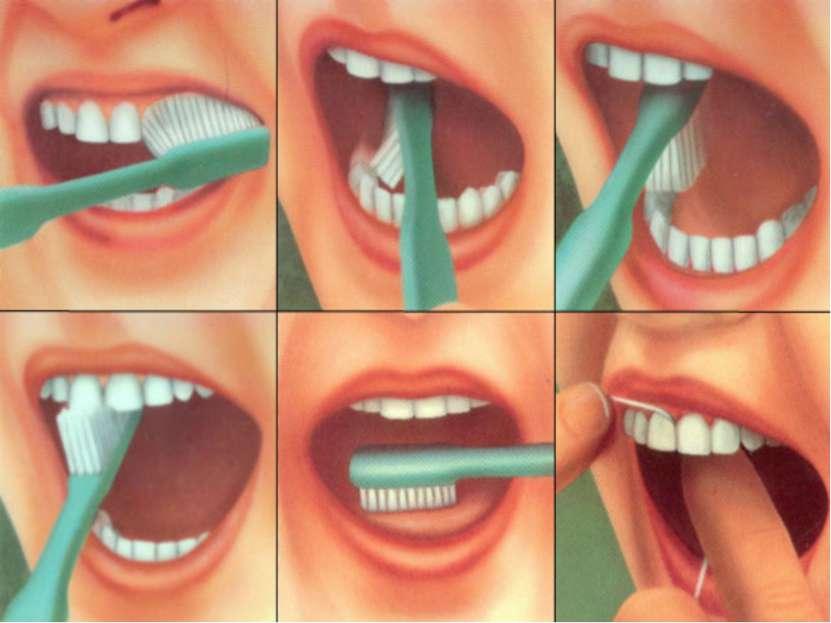 Можно ли не чистить молочные зубы