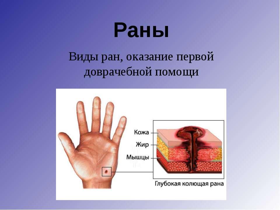 Раны Виды ран, оказание первой доврачебной помощи