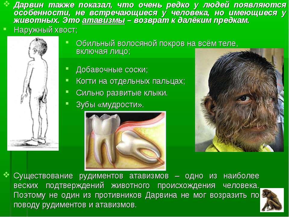 Дарвин также показал, что очень редко у людей появляются особенности, не встр...