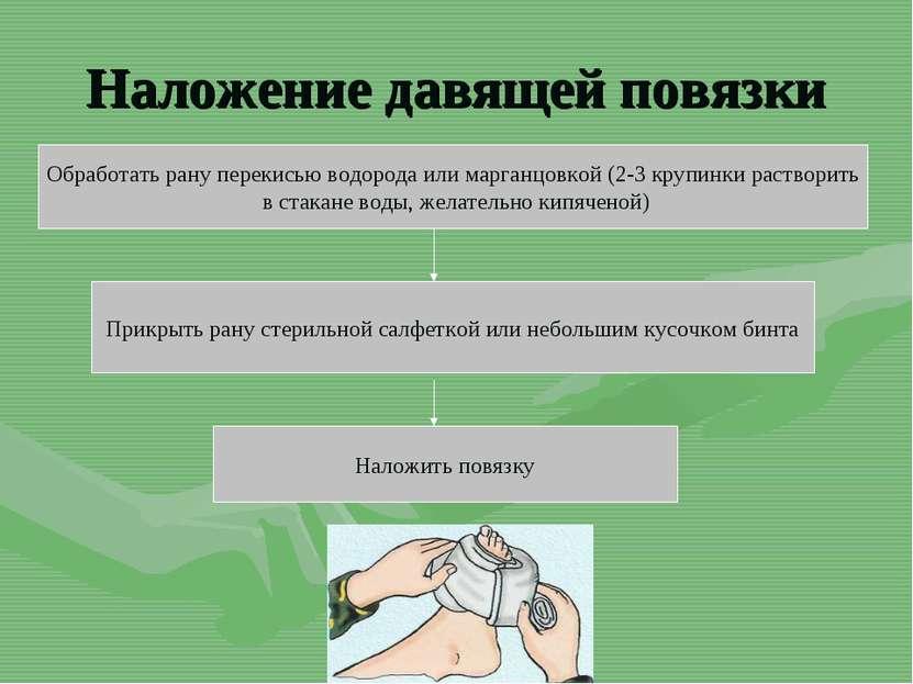 Наложение давящей повязки Обработать рану перекисью водорода или марганцовкой...