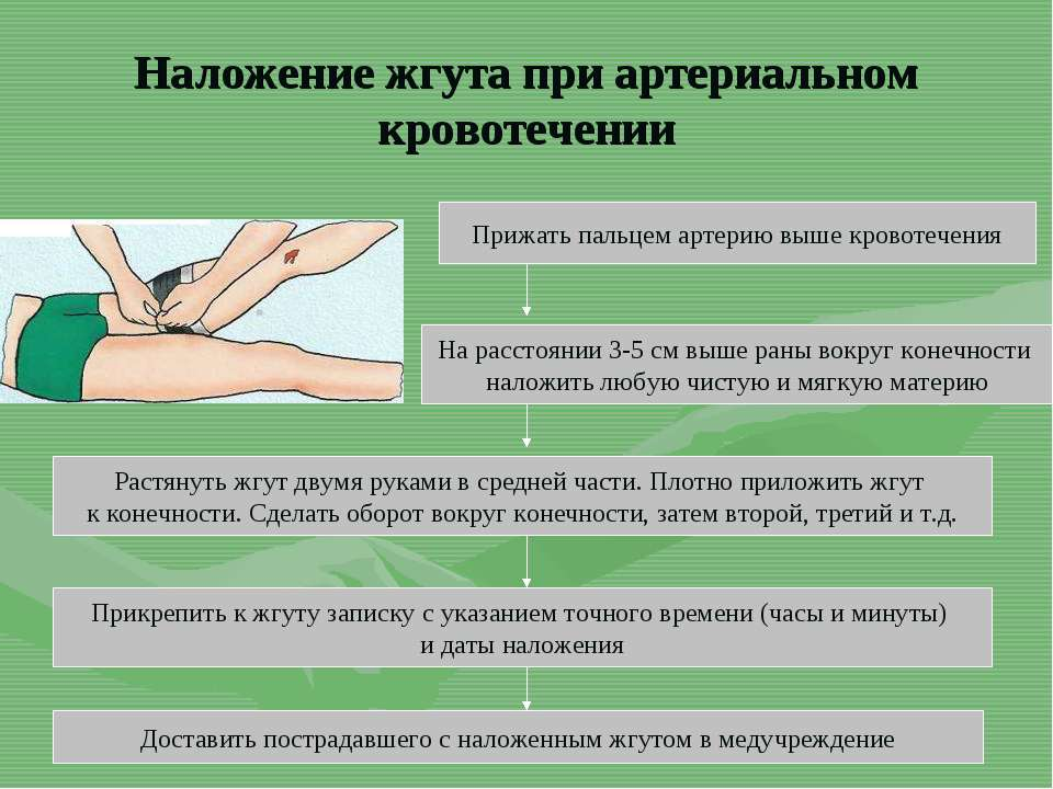 Наложение жгута при артериальном кровотечении Прижать пальцем артерию выше кр...