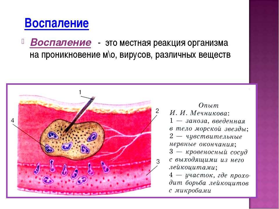 Воспаление Воспаление - это местная реакция организма на проникновение м\о, в...
