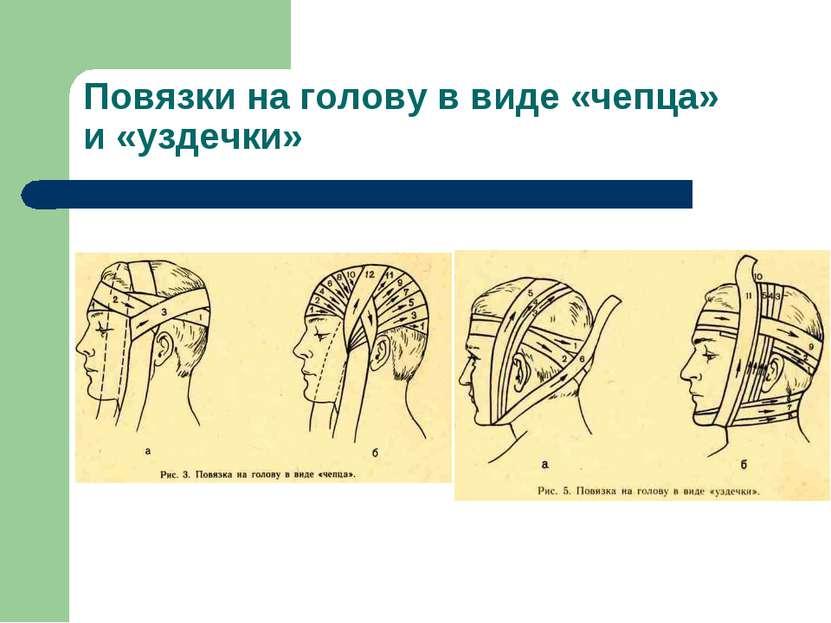 Повязки на голову в виде «чепца» и «уздечки»