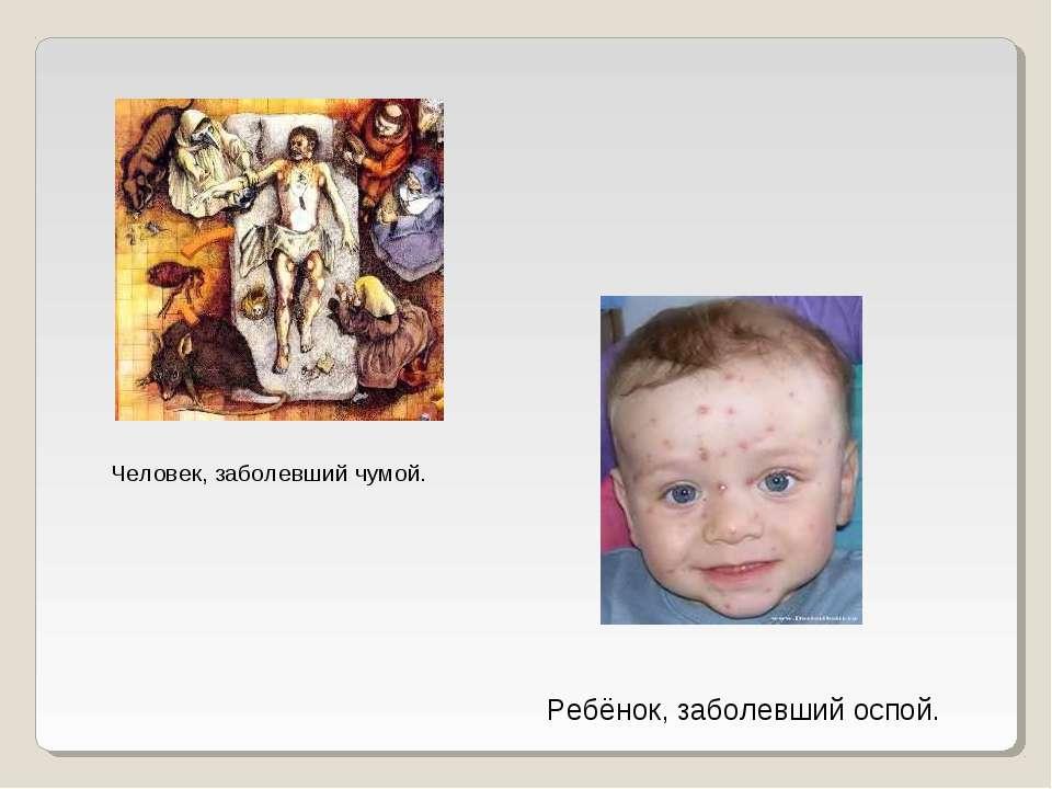Человек, заболевший чумой. Ребёнок, заболевший оспой.
