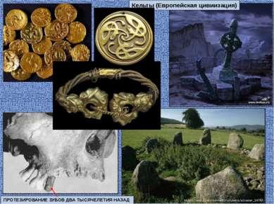 ПРОТЕЗИРОВАНИЕ ЗУБОВ ДВА ТЫСЯЧЕЛЕТИЯ НАЗАД Кельты (Европейская цивиизация)