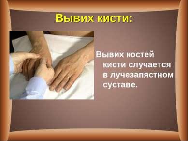 Вывих кисти: Вывих костей кистислучается в лучезапястном суставе.