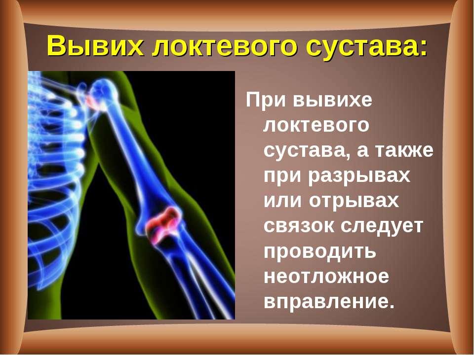 Вывих локтевого сустава: При вывихе локтевого сустава, а также при разрывах и...