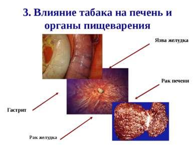 3. Влияние табака на печень и органы пищеварения Рак желудка Гастрит Рак пече...
