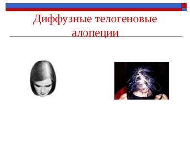 Диффузные телогеновые алопеции