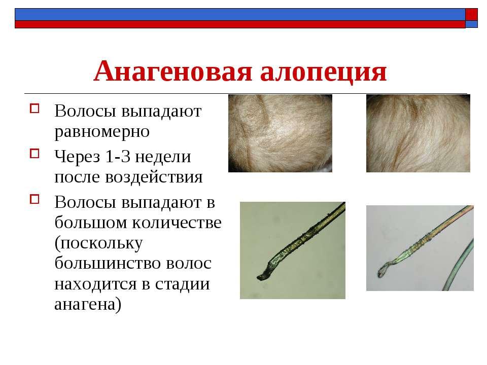 Анагеновая алопеция Волосы выпадают равномерно Через 1-3 недели после воздейс...