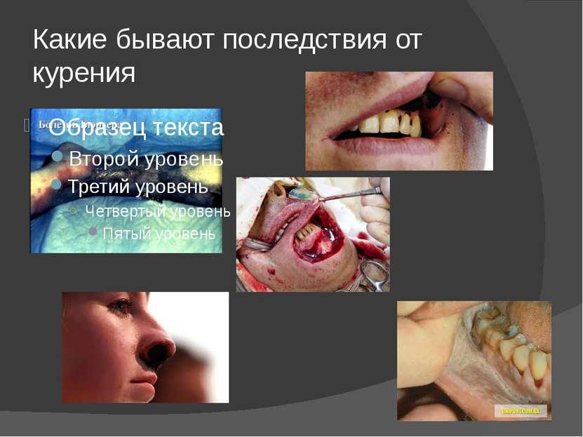 Какие бывают последствия от курения