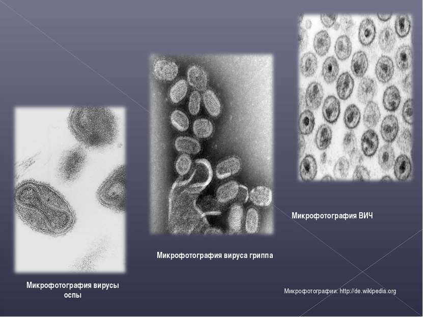 Микрофотография вируса гриппа Микрофотография ВИЧ Микрофотографии: http://de....