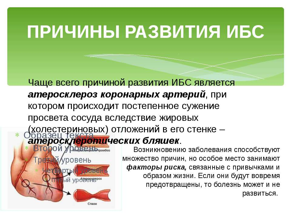 ПРИЧИНЫ РАЗВИТИЯ ИБС Чаще всего причиной развития ИБС является атеросклероз к...