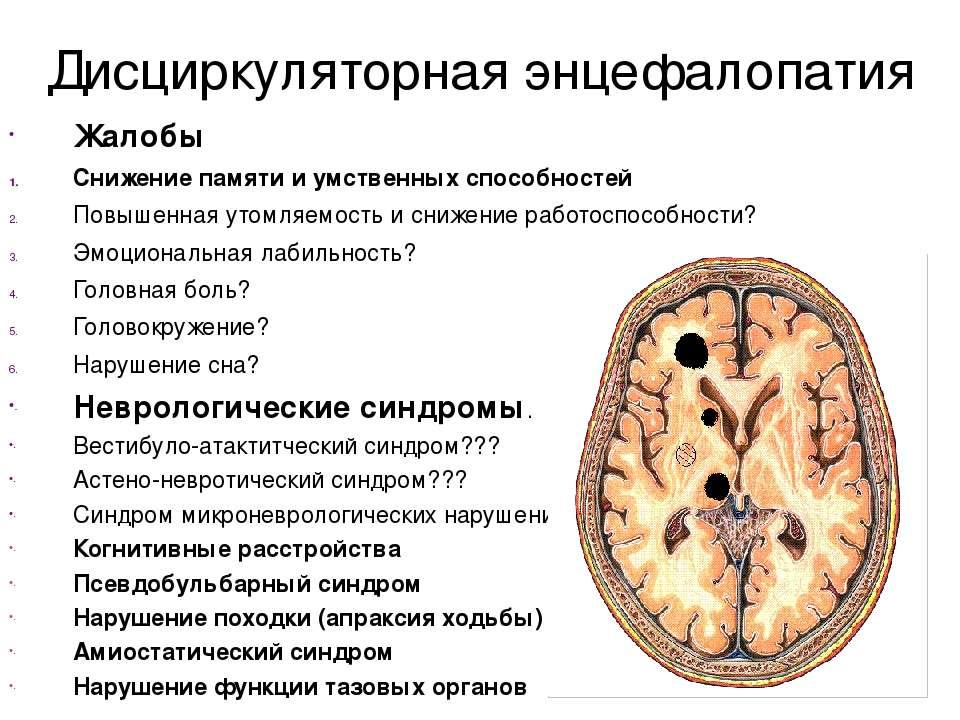 Дисциркуляторная энцефалопатия Жалобы Снижение памяти и умственных способност...
