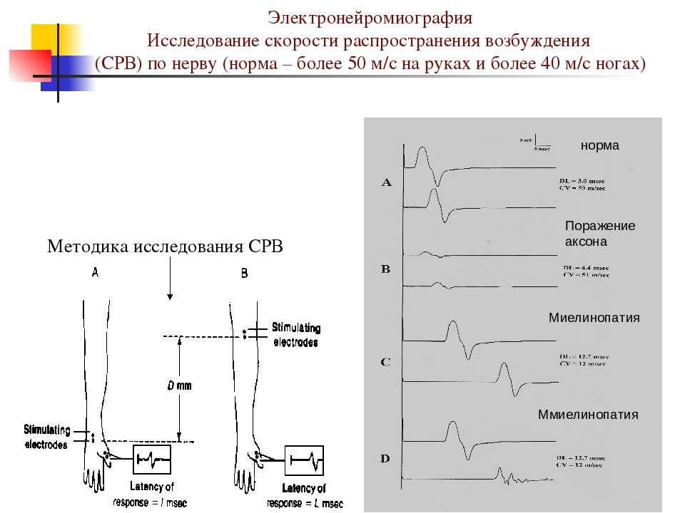 Электронейромиография Исследование скорости распространения возбуждения (СРВ)...