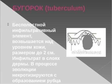 БУГОРОК (tuberculum) Бесполостной инфильтративный элемент, возвышается над ур...