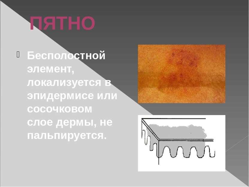 ПЯТНО Бесполостной элемент, локализуется в эпидермисе или сосочковом слое дер...