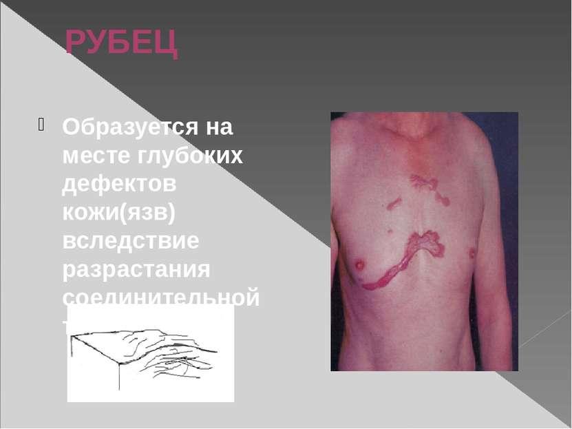 РУБЕЦ Образуется на месте глубоких дефектов кожи(язв) вследствие разрастания ...