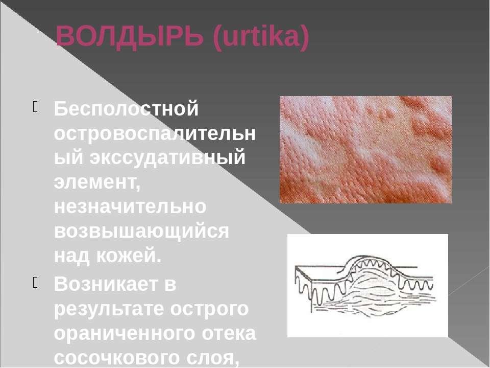 ВОЛДЫРЬ (urtika) Бесполостной островоспалительный экссудативный элемент, незн...