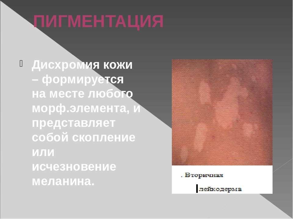 ПИГМЕНТАЦИЯ Дисхромия кожи – формируется на месте любого морф.элемента, и пре...