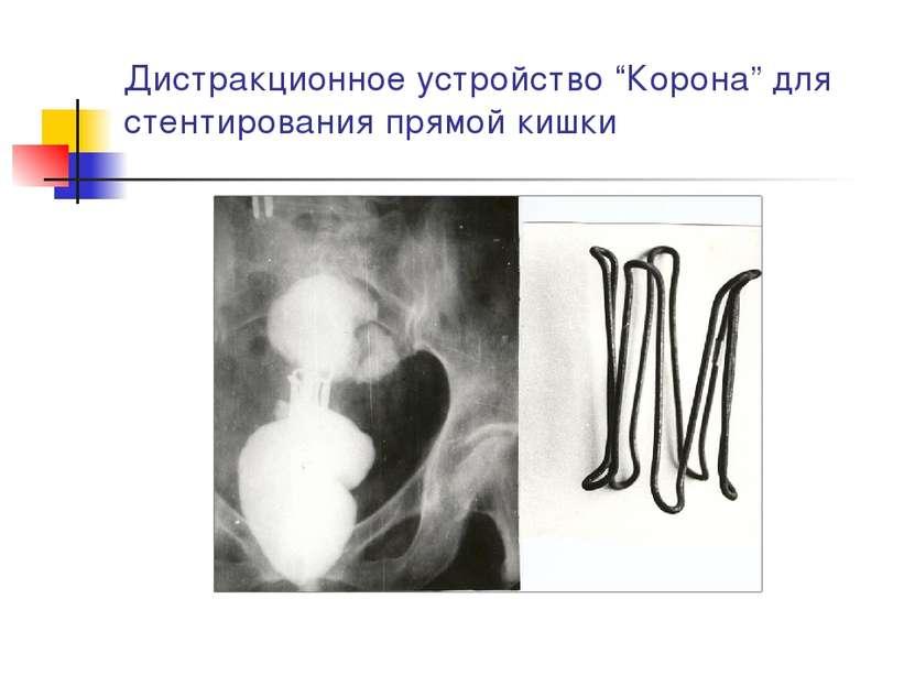 """Дистракционное устройство """"Корона"""" для стентирования прямой кишки"""