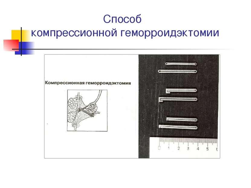 Способ компрессионной геморроидэктомии
