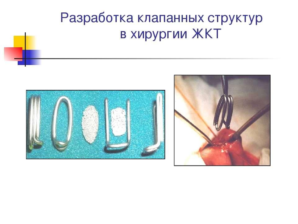 Разработка клапанных структур в хирургии ЖКТ