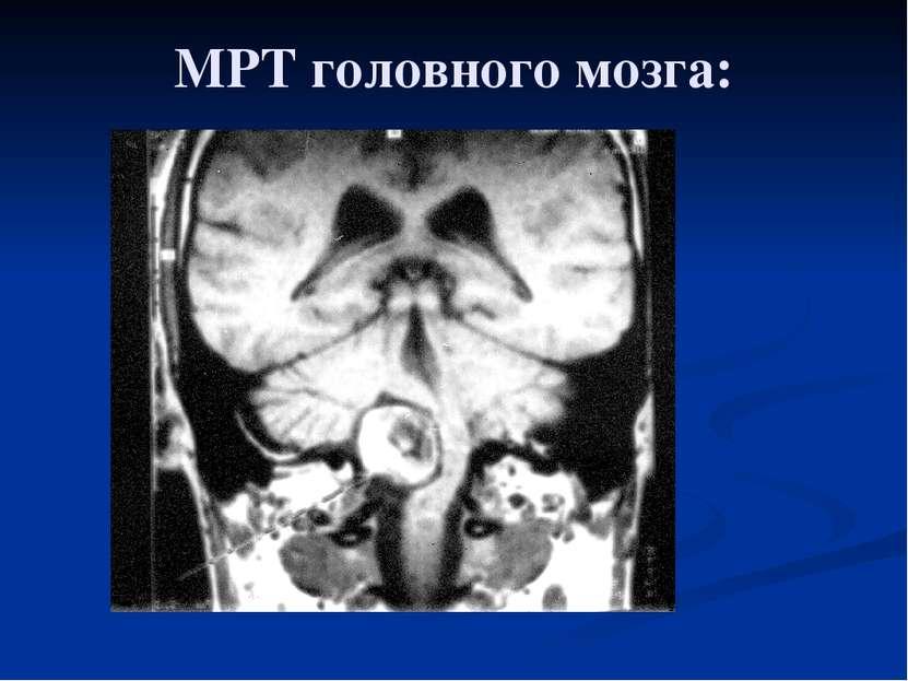 МРТ головного мозга: