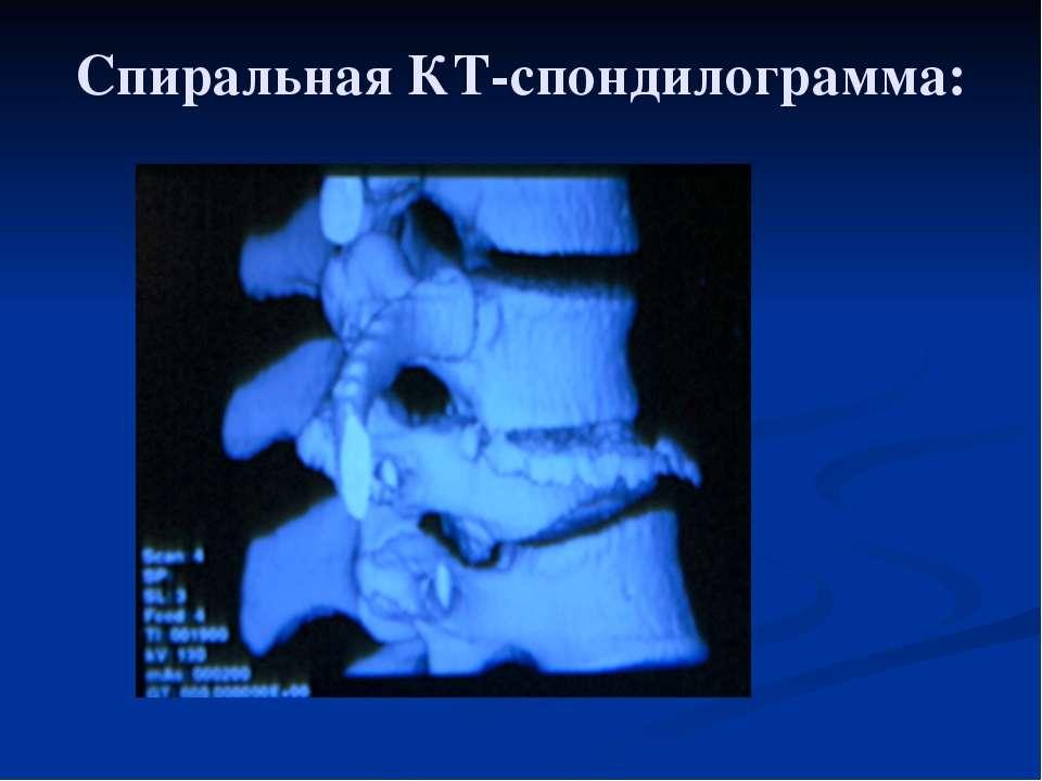 Спиральная КТ-спондилограмма: