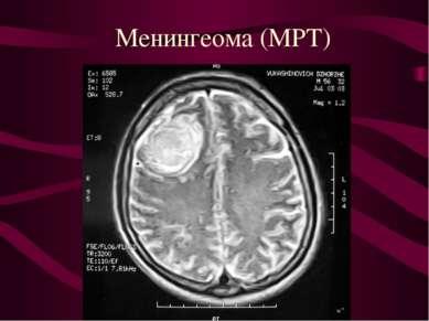 Менингеома (МРТ)
