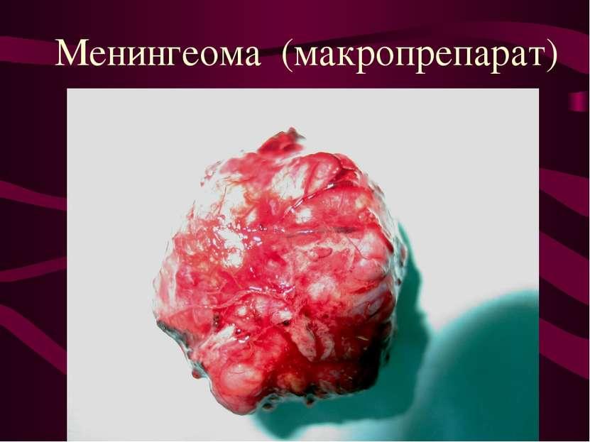 Менингеома (макропрепарат)