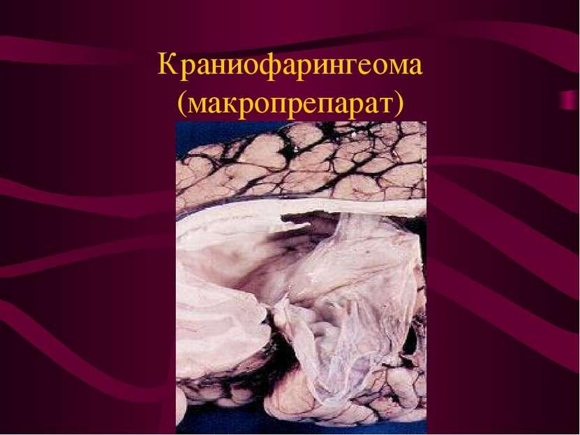 Краниофарингеома (макропрепарат)