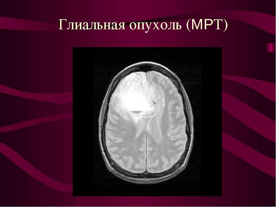 Глиальная опухоль (МРТ)